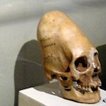 Thumbnail image for Geneticist: Peru's giant deformed skulls are not human